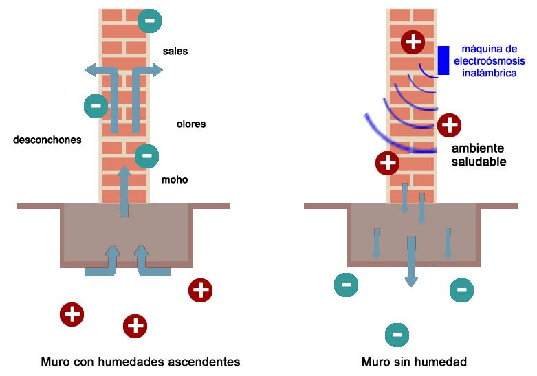 Precio aparato electroosmosis inalambrica